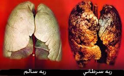 بررسی علل ابتلا افراد غیر سیگاری به سرطان ریه