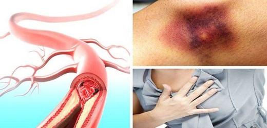 بررسی دلیل ایجاد لخته خونی