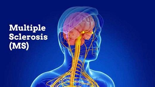 بررسی اصلی ترین علل بیماری ام اس