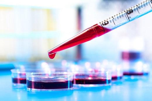 علل ابتلا و روش های درمان بیماری هموفیلی