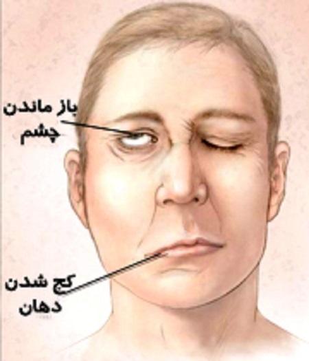 فلج عصب های مربوط به صورت یا فلج بل