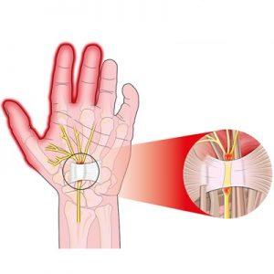 نشانه ها و علائم سندرم تونل کارپال