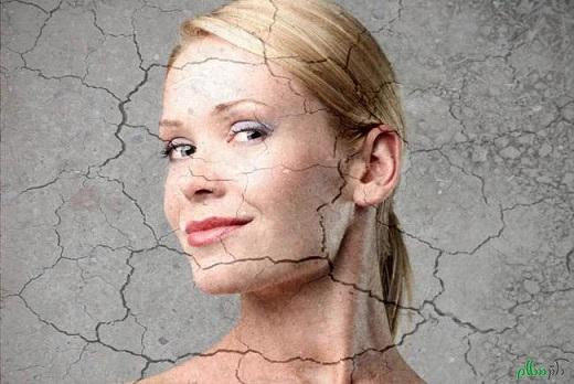 ارتباط ابتلا به اختلالات پوستی با بیماری های کبد