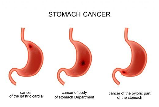 بررسی روش های مقابله با سرطان معده