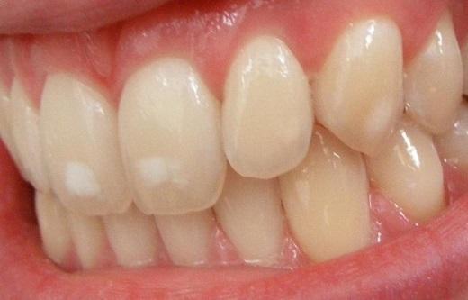 از بین بردن لکههای سفید دندان