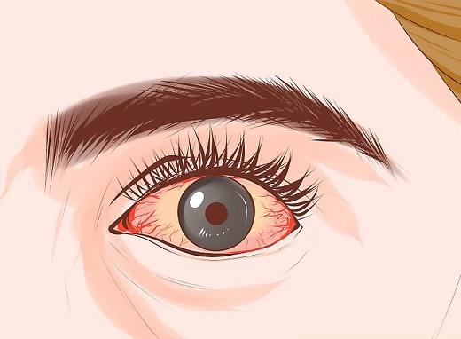 گلوکوم یا آب سیاه چشم